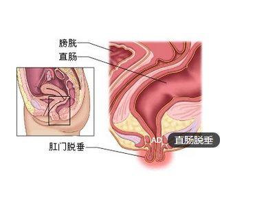 因:   1.解剖因素:发育不良幼儿 年老衰弱者,易出现肛提肌和盆底